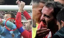 'Ăn no' cùi chỏ, sao Atletico bật máu mồm, rụng răng lả tả