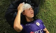 Thông tin mới nhất về chấn thương của Duy Mạnh và Minh Tuấn sau cú đọ đầu kinh hoàng ở Hàng Đẫy
