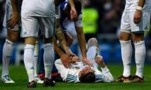 CẬN CẢNH chấn thương rùng rợn khiến Ronaldo suýt mù mắt sau khi lãnh trọn gầm giày của đối thủ