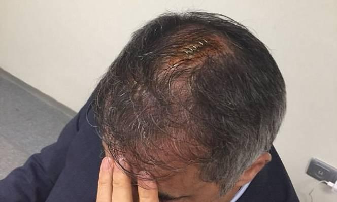 HLV bị CĐV ném vỡ đầu, nhập viện, khâu 5 mũi