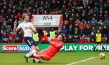 Chấn thương nặng, Harry Kane đối mặt nguy cơ lỡ World Cup